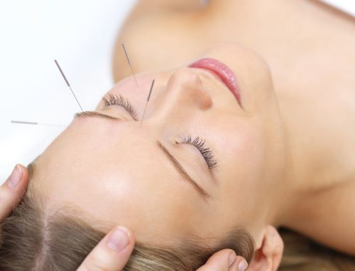 5 Beauty Benefits of Acupuncture